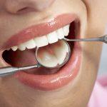 Co warto wiedzieć o implantach dentystycznych?