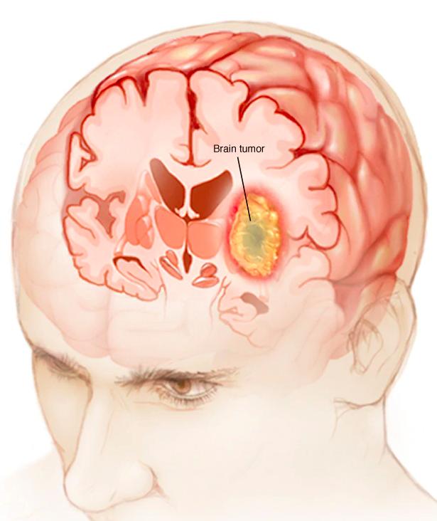 rak mózgu